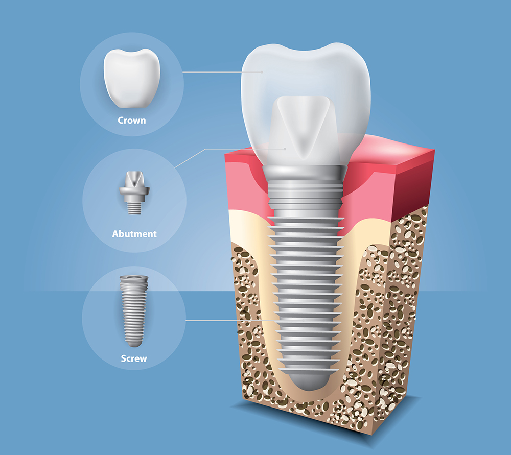 Impact-dental-care-implant